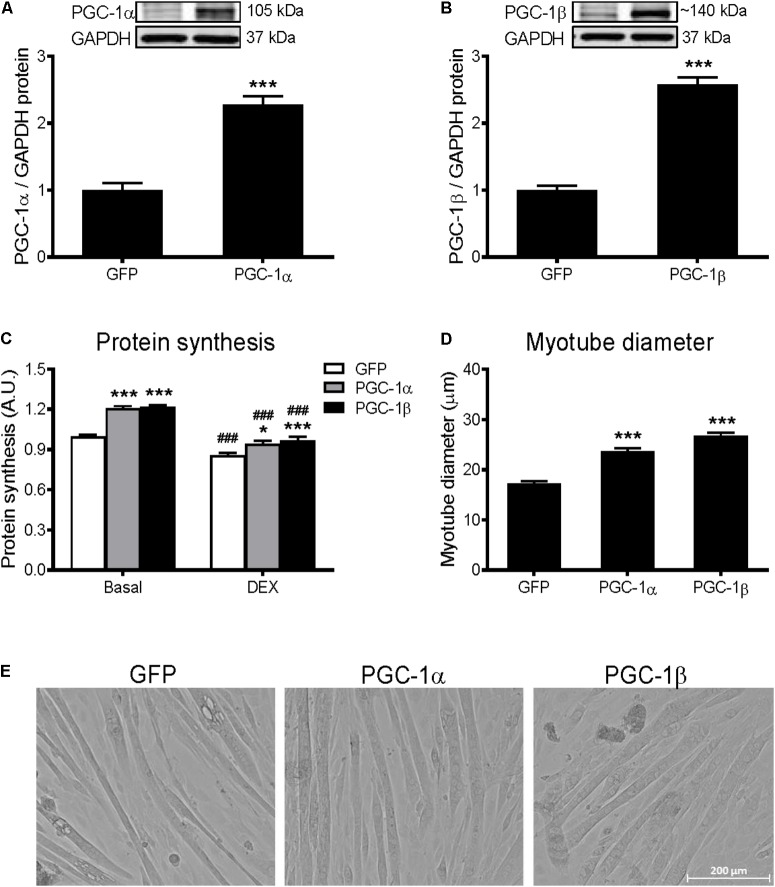 Protein synthesis and myotube diameter in GFP, PGC-1α, and PGC-1β infected C2C12 myotubes. (A) PGC-1α and (B) PGC-1β protein 72 h after infection with GFP, PGC-1α, and PGC-1β adenoviruses. Bands were normalized to GAPDH protein; n = 4 per group. ∗∗∗ P