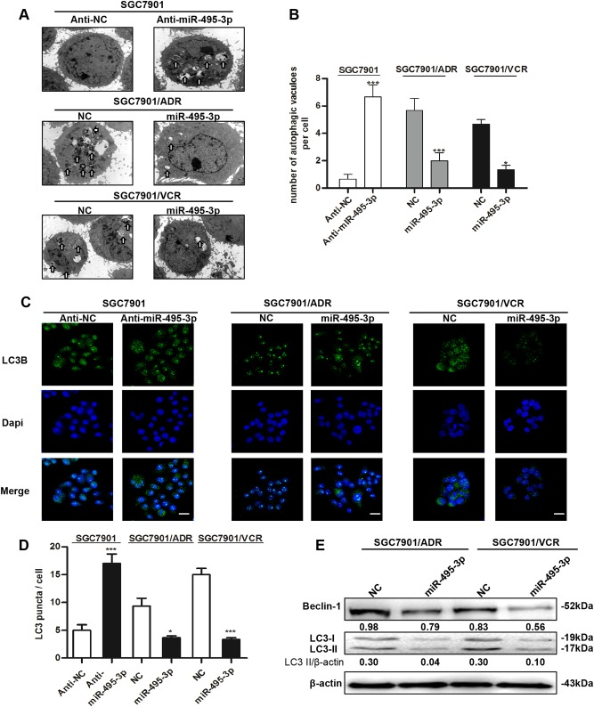 miR-495-3p inhibits autophagy in GC MDR cells. a Transmission electron micrographs of morphological changes in SGC7901 transfected with miR-495-3p inhibitor or GC MDR cells transfected with miR-495-3p mimic. White arrows represent autophagosomes or autolysosomes. (Scale bar = 500 nm). b Quantitative analysis of the number of autophagic vesicles. c Representative images and d Quantification of LC3 puncta (green) in SGC7901 transfected with miR-495-3p inhibitor or GC MDR cells transfected with miR-495-3p mimics. Scale bars: 50 μM. e Western blot analysis of the protein levels of Beclin-1, and LC3I/II in GC MDR cells transfected with miR-495-3p mimic or nc. All values were expressed as mean ± SD, n = 4 for each group. * P