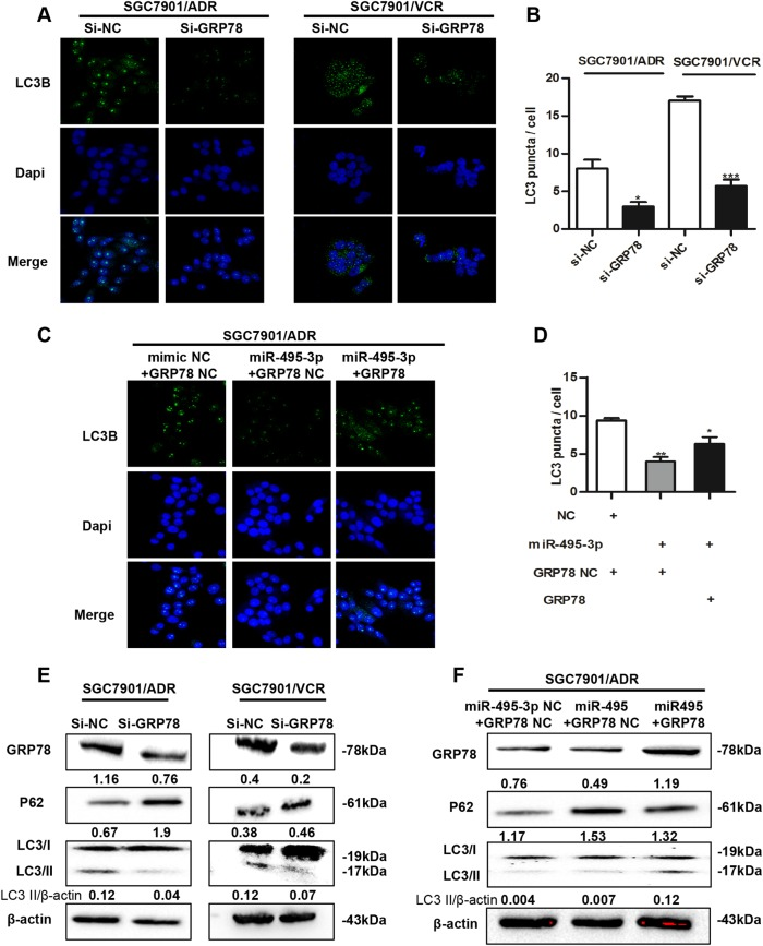 Downregulation of GRP78 by miR-495-3p inhibits autophagy in GC MDR cells. a Representative images and b Quantification of LC3 puncta (green) in GC MDR cells transfected with si-GRP78 or si-nc. Scale bars: 50 μM. c Representative images and d Quantification of LC3 puncta (green) in SGC7901/ADR co-transfected with GRP78 3′-UTR-mutant overexpression vector/nc and miR-495-3p/nc. e The expression level of GRP78, LC3BI/II, and P62 in GC MDR cells transfected with si-GRP78 or si-NC were determined by western blotting. f The protein level of GRP78, LC3BI/II, and P62 in SGC7901/ADR co-transfected with GRP78 3′-UTR-mutant overexpression vector/nc and miR-495-3p/nc. All values expressed as mean ± SD, n = 3 for each group. * P