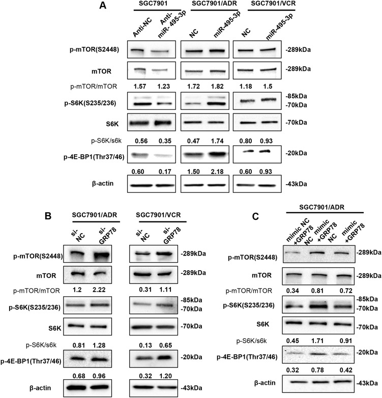 miR-495-3p inhibits autophagy by activating mTOR signaling. a Western blot analysis of phosphorylated mTOR (p-mTOR) and its main substrates 4E-BP1 (p-4E-BP1) and S6 (p-S6) in SGC7901 transfected with anti-miR-495-3p and GC MDR cells transfected with miR-495-3p. b The phosphorylation status of mTOR, S6K (p-S6K), and 4E-BP1 (p-4E-BP1) transfected with si-GRP78 and si-NC were measured by western blotting ( c ). Western blotting determines the phosphorylation of mTOR, S6K (p-S6K), and 4E-BP1 (p-4E-BP1) in SGC7901/ADR co-transfected with GRP78 3′-UTR-mutant overexpression vector/nc and miR-495-3p/nc. All values expressed as mean ± SD, n = 3 for each group. * P