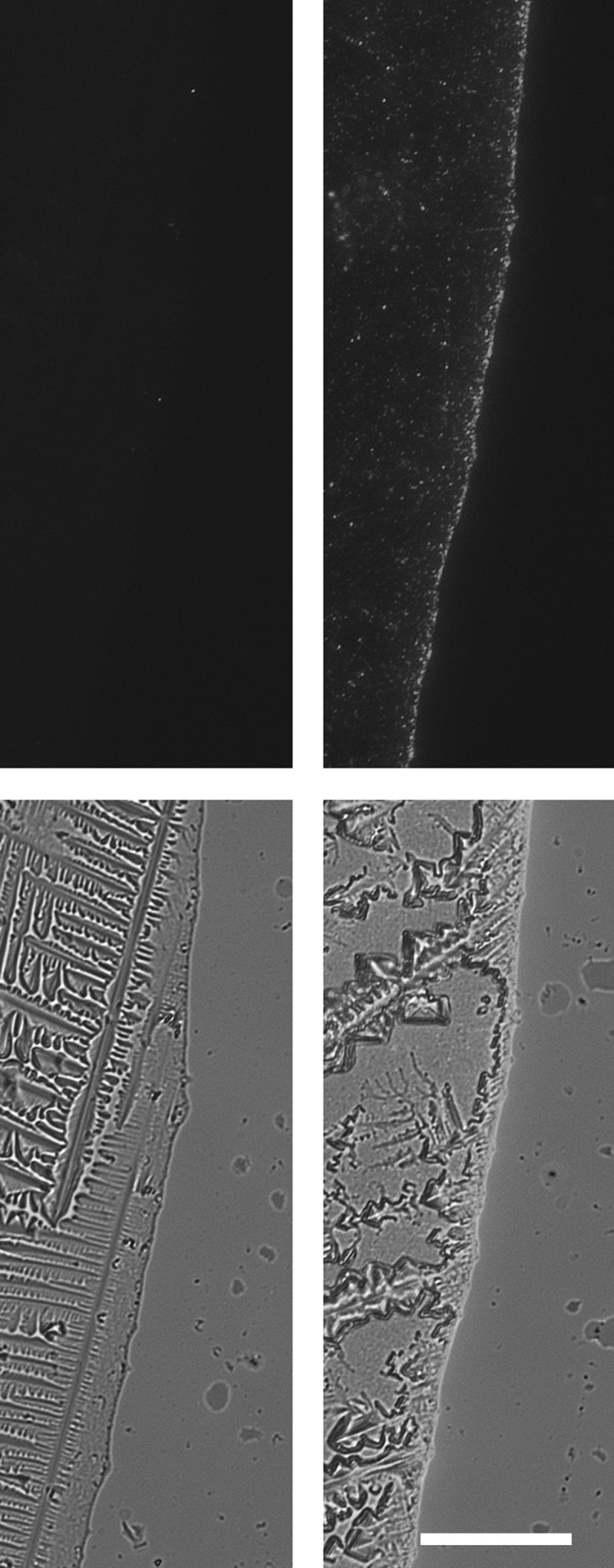 CD63-eGFP but not eGFP expressing HEK293T cells release high quantities of eGFP-labelled particles into their extracellular environment. After processing of supernatants of HEK293T cells either transfected with eGFP-encoding plasmids (left side) or CD63-eGFP-encoding plasmids (right side) with ultracentrifugation, 1 µL of each resolved pellet was transferred onto a microscopic slide and allowed to dry (results in crystal formation). At the original border of the HEK293T CD63-eGFP drop, high amounts of GFP + -particles were concentrated. Upper row: fluorescent image, lower row: overlay fluorescent and bright field images; scale bar: 50 µm for all images.