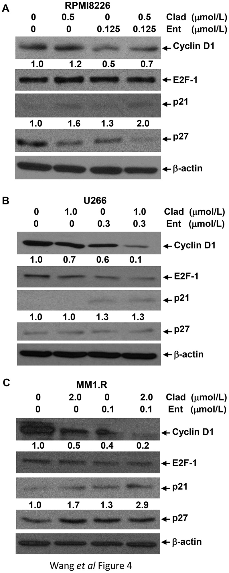 The combinations of cladribine and entinostat markedly alter expression of several key molecular markers critical for G1-S transition. MM cells were cultured with RPMI1640 (2.5% FBS) in the absence or presence of entinostat (Ent), cladribine (Clad) alone or their combinations for 48 hrs. Cells were collected and subjected to western blot analyses with specific antibody directed against Cyclin D1, E2F-1, p21 waf−1 , p27 kip−1 , or β-actin. The densitometry analyses of p21 waf-1 and Cyclin D1 signals are shown underneath, and the arbitrary numbers indicate the intensities of each cell line relative to controls, defined as 1.0. (a) RPMI8226; (b) U226; (c) MM1.R.