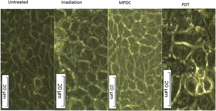 Morphology of untreated, irradiated, MPDC-treated and PDT-treated MCF-7 cells. No morphological change was noted in irradiated or MPDC treated cells when compared to untreated cells. The morphology of PDT-treated MCF-7 cells changed, include an elongation of cells, decrease in cell number, detachment and rounding off (200× magnification).