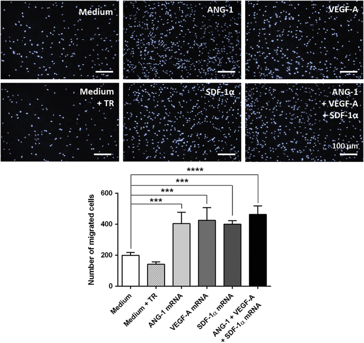 Chemotactic Migration of EPCs toward mRNA-Engineered EPCs 1 × 10 5 murine EPCs were cultivated overnight, and then they were transfected with 1.6 μg <t>ANG-1,</t> 0.8 μg <t>VEGF-A,</t> or 0.5 μg SDF-1α mRNA or with an mRNA cocktail containing 1.6 μg ANG-1, 0.8 μg VEGF-A, and 0.5 μg SDF-1α mRNA. Migration behavior of untreated EPCs (5 × 10 4 ) seeded on transwell inserts toward mRNA-transfected EPCs was analyzed using a chemotactic migration assay. As a control, EPCs incubated with medium or medium containing transfection reagent (TR) were used. After 6 hr, migrated EPCs through 8-μm transwell inserts were stained with DAPI, and cell numbers were calculated using ImageJ software. Scale bars represent 100 μm. Results are shown as mean + SEM (n = 4). Statistical differences were determined using one-way ANOVA followed by Bonferroni multiple comparison test (***p