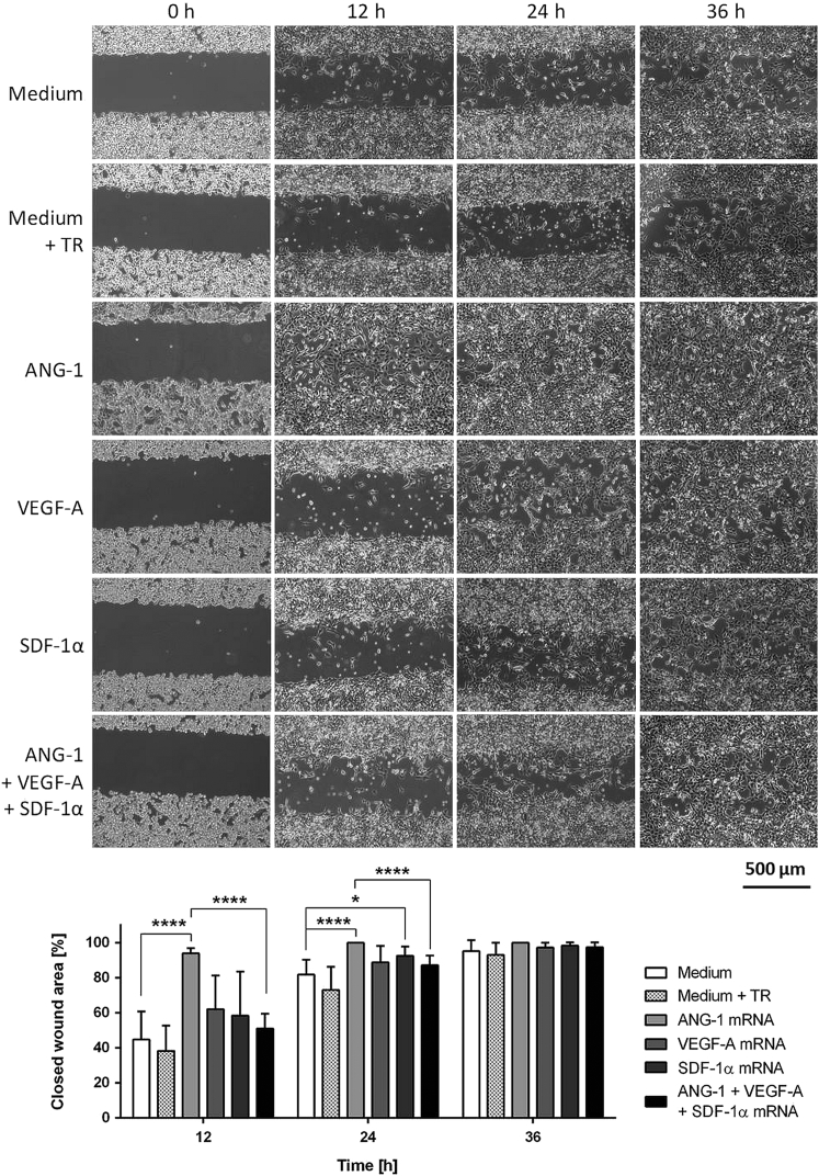 Analysis of Wound-Healing Capacity of mRNA-Engineered EPCs via Wound Scratch Migration Assay 1 × 10 5 murine EPCs were cultivated overnight, and then they were transfected with 1.6 μg ANG-1, 0.8 μg VEGF-A, or 0.5 μg SDF-1α mRNA or with an mRNA cocktail containing 1.6 μg ANG-1, 0.8 μg VEGF-A, and 0.5 μg SDF-1α mRNA. The next day, cells were detached, and 28,000 EPCs with or without mRNA transfection were seeded in each chamber of Culture-Insert 3 wells in μ-dishes. After 5 hr, when the cells completely attached and covered the surface, an open wound field was generated. Immediately after the generation of wound areas (0 hr) and after 12, 24, and 36 hr, phase-contrast images were taken and closed wound areas were calculated using Tscratch software. Scale bar represents 500 μm. Results are shown as mean + SD (n = 8). Statistical differences were determined using one-way ANOVA followed by Bonferroni multiple comparison test (*p