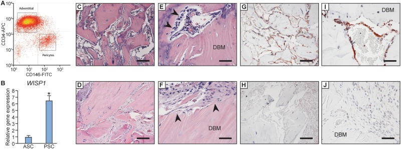 WISP-1 expression in human PSC after FACS isolation and upon orthopaedic transplantation. ( A ) Fluorescence activated cell sorting (FACS) of human lipoaspirate was performed per established protocols to isolate perivascular stem/stromal cells (PSC). After isolation of CD31−CD45− non-endothelial/non-hematopoietic cells ( not shown ), PSC were further defined as adventitial progenitor cells (APC, CD34+CD146−) or microvascular pericytes (CD146+CD34−). ( B ) Quantitative RT-PCR for WISP1 transcripts, examined in passage one PSC or unpurified ASC (adipose-derived stromal cells) from the same patient sample. Performed in technical triplicate. ( C – F ) H E appearance of rat spine fusion segments. ( C , E ) H E appearance of PSC-treated spinal fusion segments with new bone formation, incorporation of demineralized bone matrix (DBM), and conspicuous bone-lining osteoblasts (arrowheads). ( D , F ) H E appearance of control-treated spinal fusion segments, with little new bone formation, DBM particles without connections to each other and embedded in fibrous stroma, and inactive bone lining cells (arrowheads). ( G – J ) WISP-1 indirect immunohistochemical staining of PSC treated spine fusion segments. WISP-1 immunoreactivity appears brown, while nuclear Hematoxylin counterstain appears blue. ( G , I ) Strong WISP-1 immunoreactivity in bone lining cells among PSC treated samples. ( H , J ) Weak to intermediate WISP-1 immunoreactivity in inflammatory cells and stromal fibroblasts among control treated samples. * P