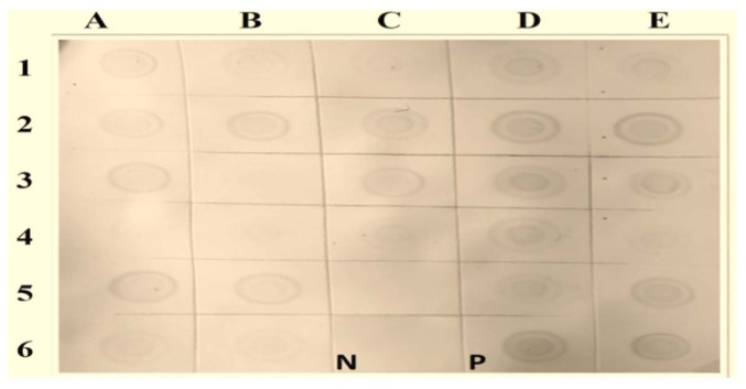 Dot blot hybridization of selected samples using a WmCSV-DIG-DNA probe. Nitrocellulose membranes indicating positive (purple) and negative results. Column A1, 2, 3: from Wadi Baish; Column A 4, 5, 6: from Jeddah; Column B 1, 2, 3: from Jezan; Column B 4, 5, 6: from Asfan; Column C 1, 2, 3: from Ghonfada; Column C 4, 5: from Tofeel; Column D 1, 2, 3, 4, 5: from Abu-Arish; and Column E 1, 2, 3, 4, 5, 6: from Al-Lith. PCR product was used as a positive control (P). No hybridization reaction was observed with uninfected watermelon samples (N).