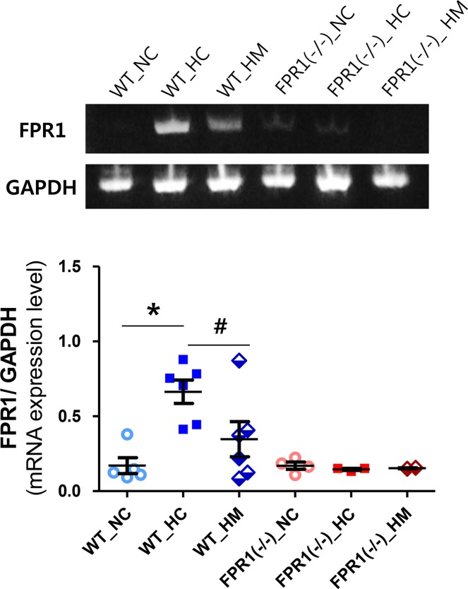 mRNA level of formyl peptide receptor (FPR) 1 in mouse lung tissue. Representative RT-PCR blot of FPR1 (upper panel) and its densitometric histogram, normalized to glyceraldehyde-3-phosphate dehydrogenase (GAPDH), of each group (lower panel). WT-NC, wild type mice of normoxia control; WT-HC, wild type mice of hyperoxia control; WT-HM, wild type mice of hyperoxia with MSCs; FPR1 -/- -NC, FPR1 knockout mice of normoxia control; FPR1 -/- -HC, FPR1 knockout mice of hyperoxia control; FPR1 -/- -HM, FPR1 knockout mice of hyperoxia with MSCs (n = 6, 8, 7, 6, 7 and 6 in WT-NC, WT-HC, WT-HM, FPR1 -/- -NC, FPR1 -/- -HC and FPR1 -/- -HM, respectively) Data are given as mean ± SEM. * P