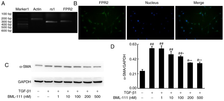 <t>BML-111</t> decreased TGF-β1-induced NIH3T3 cell α-SMA expression in a dose-dependent manner. (A) NIH3T3 cells express rs1 and (B) FPR2. Cells were pretreated with a vehicle (0.035% ethanol) or BML-111 (1, 10, 100, 200 and 500 nM) for 30 min and then treated with TGF-β1 (5 ng/ml) for 24 h. (C) The expression of α-SMA was assessed using western blotting and (D) quantified. Similar results were obtained from at least 3 sections. Data are expressed as the mean ± standard deviation. # P