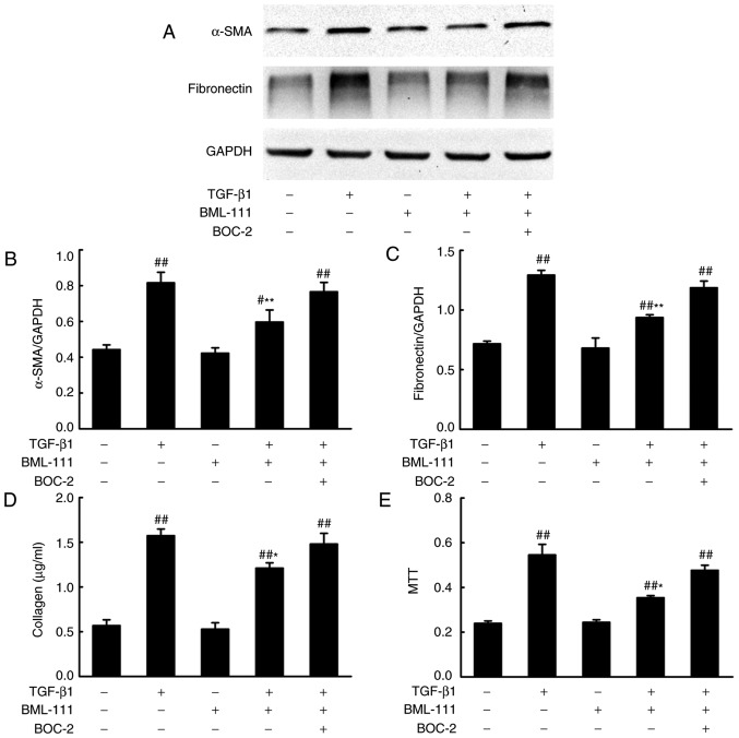 BML-111 suppressed TGF-β1-induced NIH3T3 cell activation. Cells were pretreated with a vehicle (0.035% ethanol) or BML-111 (200 nM) for 30 min in the absence or presence of BOC-2 (10 µ M; administered 30 min prior to BML-111 treatment) and then stimulated with TGF-β1 (5 ng/ml) for 24 h. (A) The protein expression of α-SMA and fibronectin and the results of the western blot analysis quantified for (B) α-SMA and (C) fibronectin; and (D) total collagen concentration and (E) cell viability were assessed. Data are presented as the mean ± standard deviation for three independent experiments. # P