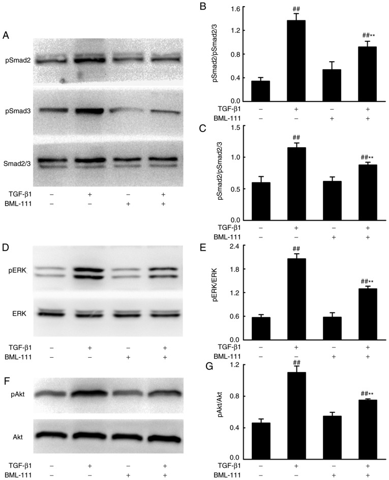 BML-111 inhibited TGF-β1-induced NIH3T3 cell Smad-dependent and Smad-independent signaling. NIH3T3 cells were stimulated using 5 ng/ml TGF-β1 in the absence or presence of 200 nM BML-111 (added 30 min prior to experimentation). Levels of (A) Smad2/3 and phosphorylated (B) Smad2/(C) Smad3 were assessed. (D) ERK and (E) phosphorylated ERK, (F) Aktand (G) phosphorylated Aktwere also analyzed using western blotting, 24 h following cell stimulation. The figures are representative results of three independent experiments. Data are expressed as mean ± standard deviation. ## P