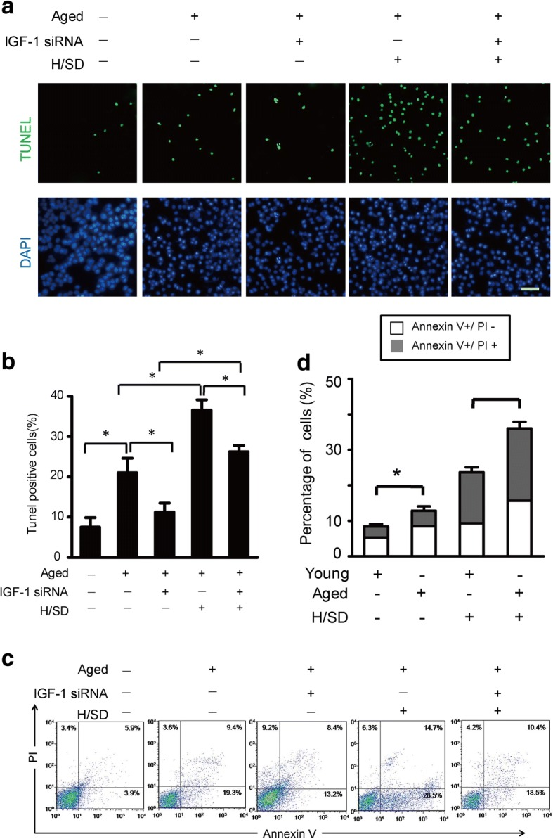 IGF-1 knockdown decreased apoptosis. a Representative terminal deoxynucleotidyl transferase-mediated nick-end labeling (TUNEL) images of BM-MSCs treated with H/SD with or without IGF-1 siRNA (scale bars, 20 μm). b The quantification result of the apoptotic BM-MSCs with or without IGF-1 siRNA. c Representative results of the FACS analysis of BM-MSCs under normal and H/SD conditions with or without IGF-1 siRNA administration. d Quantification of apoptosis is presented as the percentage of cells with the annexin marker in the early and late apoptotic stages with or without IGF-1 siRNA. Data are expressed as the means ± SEM; n = 5; * p