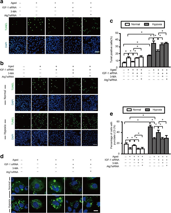 IGF-1 knockdown protects aged BM-MSCs by increasing autophagy. a Representative terminal deoxynucleotidyl transferase-mediated nick-end labeling (TUNEL) images of aged BM-MSCs treated with IGF-1 siRNA with or without autophagy inhibition via 3-methyladenine (3-MA) and Atg7 small interfering RNA (siRNA). b Representative terminal deoxynucleotidyl transferase-mediated nick-end labeling (TUNEL) images of aged BM-MSCs treated with IGF-1 siRNA with or without autophagy inhibition via 3-methyladenine (3-MA) and Atg7 small interfering RNA (siRNA) under normal and hypoxic conditions. c Quantification of apoptotic BM-MSCs under normal and hypoxic conditions. d Representative immunofluorescence images of GFP-LC3 (green fluorescent) and DAPI (blue fluorescence) in BM-MSCs of each group (scale bars, 20 mm). e Histogram showing the percentages of BM-MSCs with punctate LC3 in each group under normal and hypoxic conditions