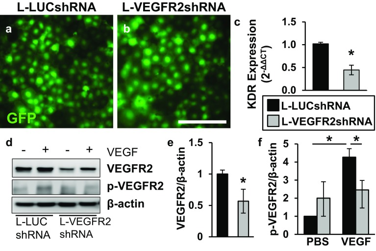 L-VEGFR2shRNA knocks down VEGFR2 mRNA and protein in rat endothelial cells. a, b rRMVECs transduced by L-LUCshRNA or L-VEGFR2shRNA for 72 h. c RT-qPCR, mRNA expression for VEGFR2 was reduced in rRMVECs transduced by L-VEGFR2shRNA, compared to L-LUCshRNA (L-LUCshRNA vs. L-VEGFR2shRNA; 1.02 ± 0.14 vs. 0.45 ± 0.11; p = 0.03; n = 2–4). d Image of Western blot gel from rRMVECs. e, f Densitometry quantification of total VEGFR2 protein ( e ) and p-VEGFR2 ( f ) relative to β-actin. e VEGFR2 protein was significantly reduced in rRMVECs transduced by L-VEGFR2shRNA, compared to L-LUCshRNA when cells were treated with PBS or VEGF (L-LUCshRNA vs. L-VEGFR2shRNA; p = 3.56 × 10 −4 ; n = 6). f p-VEGFR2 protein was significantly increased in VEGF-treated rRMVECs transduced by L-LUCshRNA compared to PBS treatment (L-LUCshRNA + PBS vs. L-LUCshRNA + VEGF; p = 0.003; n = 3) that was reduced in rRMVECs transduced by L-VEGFR2shRNA (L-LUCshRNA + VEGF vs. L-VEGFR2shRNA + VEGF; p = 0.04; n = 3). Scale bar in b = 50 µm. Data are means ± SEM. GFP green fluorescent protein, KDR kinase insert domain receptor (VEGFR2 gene), p-VEGFR2 phosphylated-VEGFR2