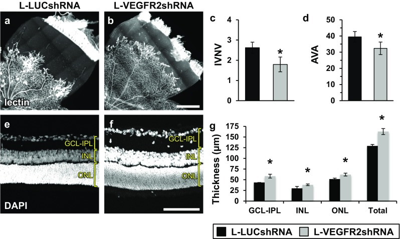 Knocked down <t>VEGFR2</t> in retinal endothelial cells reduces IVNV and AVA and increases retinal thickness measurements. a, b Representative flat mount images of L-LUCshRNA- or L-VEGFR2shRNA-treated OIR eyes stained with lectin. c IVNV was significantly decreased in L-VEGFR2shRNA compared to control, L-LUCshRNA (L-LUCshRNA vs. L-VEGFR2shRNA; 2.62 ± 0.28 vs. 1.79 ± 0.36%; p = 0.03; n = 36 or 16 retinas, respectively). d AVA was significantly decreased in L-VEGFR2shRNA compared to control, L-LUCshRNA (L-LUCshRNA vs. L-VEGFR2shRNA; 39.46 ± 3.29 vs. 32.37 ± 3.89%; p = 0.03; n = 36 or n = 16 retinas, respectively). e, f Representative retinal cross section images of L-LUCshRNA- or L-VEGFR2shRNA-treated OIR eyes stained with DAPI. g Retinal thicknesses were significantly increased in L-VEGFR2shRNA compared to control, L-LUCshRNA for all measurements (L-LUCshRNA vs. L-VEGFR2shRNA; GCL-IPL: 43.53 ± 4.51 vs. 58.34 ± 4.45 µm, p = 0.02; INL: 29.81 ± 2.05 vs. 38.09 ± 2.00 µm, p = 0.004; ONL: 51.57 ± 3.40 vs. 61.96 ± 3.33 µm, p = 0.03; Total: 129.19 ± 7.19 vs. 162.82 ± 7.07 µm, p = 0.001; n = 27 or n = 30 measurements per layer, respectively). L-LUCshRNA images and data were also used as controls in Figs. 2 and 7 . Scale bar in b = 500 µm; f = 100 µm. *Denotes significantly different from L-LUCshRNA ( p