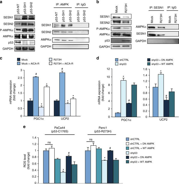 Mutant p53 inhibits <t>UCP2</t> and PGC-1α through the inhibition of SESN1/AMPK signaling. a MDA-MB-231 cells were transduced with lentiviruses containing p53-SH1 or p53-SH2 vectors for mutant p53 silencing or their non-targeting negative control (NT). Left panel: western blotting was performed using 50 μg of whole-protein extracts and probed with the indicated antibodies. The p53 expression was shown as control of p53 knockdown efficacy and the GAPDH expression was used as control of equal proteins loading. Right panel: AMPK was immunoprecipitated from protein extracts using anti-rabbit AMPK antibody (IP: AMPK) and western blot analysis was performed using indicated antibodies. Protein extracts from cells silenced for p53 expression with p53-SH1 or p53-SH2 vectors were also immunoprecipitated with rabbit IgG as control. The blot exhibits equivalent AMPK levels in all samples. b H1299 p53-null cells stably expressing R273H mutant p53 (clone H1) and its respective mock control (clone C9) were used to confirm the regulation of SESN1:AMPK by mutant p53. Left panel: western blotting was performed using 50 μg of whole-protein extracts and probed with the indicated antibodies. Right panel: SESN1 was immunoprecipitated from protein extracts using anti-SESN1 antibody (IP: SESN1) and western blot analysis was performed using indicated antibodies. Protein extracts were also immunoprecipitated with IgG as con trol. c AsPC1-p53 null cells were transfected with the vectors for the ectopic expression of p53-R273H and its mock control and treated with 1 mM AICA-R for 48 h. Gene expression analysis of the UCP2 and PGC-1α was performed by RT-qPCR and normalized to GAPDH mRNA. # p