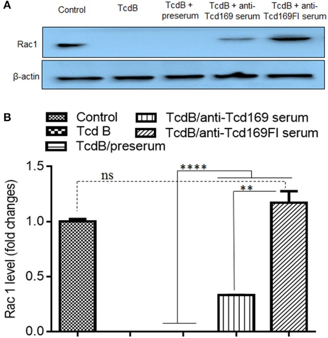 Glucosyltransferase activity of TcdB is blocked by anti-Tcd169 or anti-Tcd169FI serum. (A) CT26 cells were lysed, and the cytosolic fraction was exposed to TcdB (10 ng/ml) with or without serum for 1 h followed by Western Blot analysis using a monoclonal antibody that only recognizes non-glucosylated Rac1. β-actin was used as an equal loading control. (B) Quantitation of Rac1 levels in (A) ( ** p