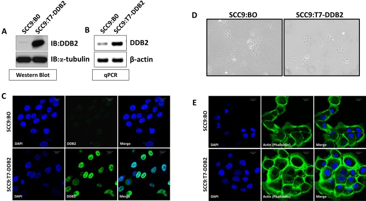 DDB2 reverses mesenchymal phenotype Stable pool of SCC9 cells were generated by transduction of either control retrovirus Babe-puro (SCC9:BO) or T7-DDB2 expressing retrovirus (SCC9:T7-DDB2). Expression of DDB2 was analyzed by ( A ) western blots of cell lysates (20ug) using a-tubulin as loading contrl, ( B ) DDB2 mRNA level were analyzed by qRT-PCR using cyclophilin as loading control, and ( C ) DDB2 localization was analyzed by immunocytochemical analysis with DDB2-Ab and counterstained with DAPI. ( D ) A representative phase contrast image (10×) of SCC9:B0 and SCC9:T7-DDB2 is shown. ( E ) SCC9:BO and SCC9:T7-DDB2 cells were subjected to immunocytochemical analysis using fluorophore, FITC-conjugated Phalloidin and counterstained with DAPI.