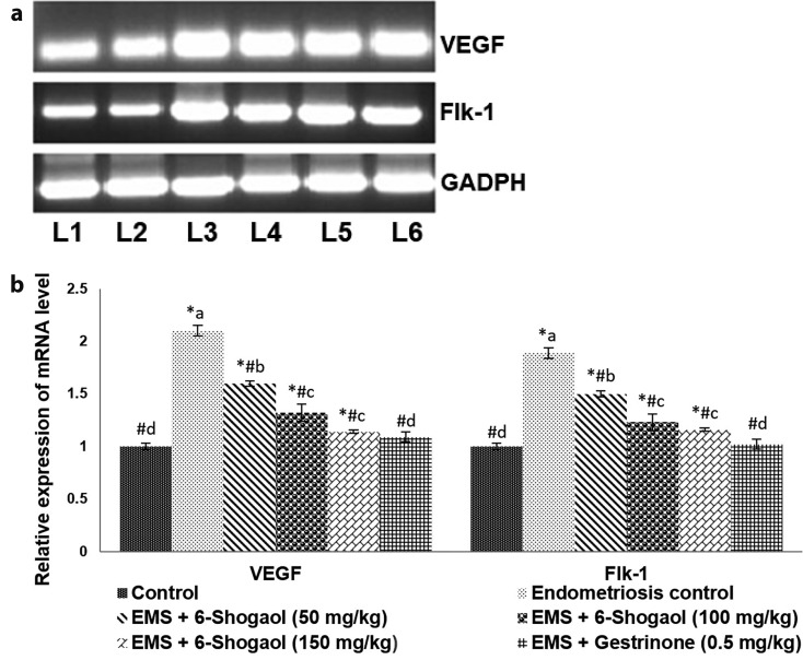 6-Shogaol regulates the expression of VEGF and Flk-1. (a) 6-Shogaol markedly down-regulates the expressions of VEGF and Flk-1 mRNA levels. (b) Relative mRNA expression levels. Values are represented as mean±SD, n=6. p
