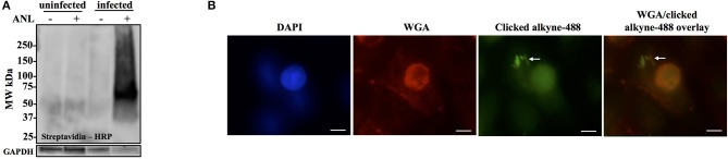 Anl-labeling of Bt-MetRS NLL during infection is bacteria-specific and allows for in-situ fluorescent detection of host-associated bacteria. (A) Human epithelial cells (A549) were infected at MOI 100 and cultured for 18 hrs in DMEM media supplemented with or without 1 mM Anl. Lysates from infected and uninfected monolayers were subjected to click chemistry using alkyne conjugated to biotin. Biotin-tagged proteins in cell lysates were detected by Western blotting with streptavidin-HRP. As a loading control, human GAPDH was detected using primary rabbit anti-GAPDH antibodies and secondary goat anti-rabbit antibodies conjugated to HRP. (B) A549 cells were infected at an MOI of 100 with Bt-MetRS NLL bacteria and grown in media supplemented with 1 mM Anl for 6 hrs. Infected cells were fixed and stained with Alexa Fluor 594-wheat germ agglutinin (WGA) conjugate to visualize host cell membranes (red). Cells were subjected to click chemistry using Alexa Fluor 488 conjugated to alkyne to tag Anl-labeled proteins (green). Host cell nuclei were stained using 6-diamidino-2-phenylindole (DAPI) (blue). White arrow indicates bacteria. Fluorescent signal was visualized using fluorescence microscopy; 100x magnification was used for all images. Scale bars indicate the distance of 10 μm.