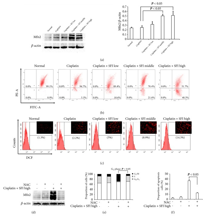 Mfn2 is involved in reversing cell cycle inhibition and cell apoptosis upon cotreatment with cisplatin and SFI. (a, b, and c) A549/DDP cells were pretreated with various concentrations (2, 3.78, and 35.18 mg/mL) of SFI for 2 hours and then exposed to cisplatin (40 μ g/mL) for another 24 hours. After drug intervention, (a) cell lysates were prepared and subjected to immunoblotting with antibodies to Mfn2 and β -actin; (b) cells were incubated with JC-1 and analyzed by flow cytometry; and (c) cells were labeled with DCFH-DA and the fluorescence intensity of the oxidized product DCF in individual cells was detected by flow cytometry and fluorescence microscopy. (d, e, and f) A549/DDP cells were pretreated with or without 2.5 mM of NAC, followed by cisplatin (40 μ g/mL) and SFI (35.18 mg/mL) cotreatment. After drug intervention, (d) cell lysates were prepared and subjected to immunoblotting with antibodies to Mfn2 and β -actin; (e) cell cycle distribution by PI staining and DNA contents were determined by flow cytometry; and (f) apoptosis was determined by Annexin V-FITC/PI staining and analyzed by flow cytometry.