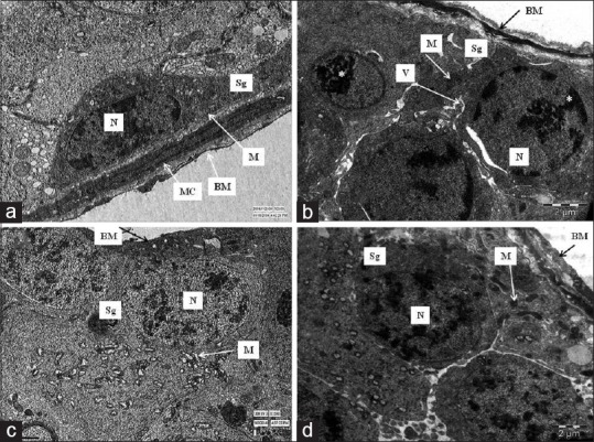 Transmission electron photomicrographs of ultrathin section of rat's testis showing spermatogonium lying on the basement membrane, with myoid cell with peripheral heterochromatin in nucleus (N) and normal mitochondria (M) in control group. (a); Sg having dense-clumped marginal chromatin material (*) in the nucleus (N) and vacuolation (V) in cytoplasm in phototherapy treated group at 70 days (b); Sg lying on irregular BM having distorted mitochondria (M) in phototherapy treated group at 100 days (c); with condensed heterochromatin in its nucleus (N) and normal appearing mitochondria in phototherapy treated group at 130 days (d). Scale bar: a = 1 μm; b = c = d = 2 μm