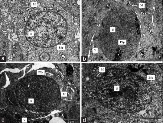 Transmission electron photomicrographs of ultrathin section of rat's testis showing primary spermatocyte with large, rounded nucleus (N) and ovoid mitochondria (M) in control group (a); PSp with clumped dense chromatin material (*) in the margins of the nucleus (N), cytoplasmic vacuoles (V), and swollen mitochondria (M) with irregular cristae in phototherapy treated group at 70 days (b); PSp with vacuoles in cytoplasm (V) and distorted mitochondria (M) with irregular cristae in phototherapy treated group at 100 days (c); the PSp appears as a large, rounded cell with round nucleus (N) containing clumps of heterochromatin scattered all over the nucleoplasm in phototherapy treated group at 130 days (d). Scale bar: A =1 μM; B = c = d = 2 μm