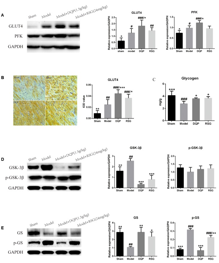 Effects of DQP on regulating glucose metabolism in ischemic heart tissue. (A) Western blot bands of GLUT4 and PFK and their quantitative results in heart tissues of rats, DQP could promote glucose intake and glycolysis to provide more energy for the ischemic heart. (B) Immunohistochemistry images of GLUT4 and quantitative results in the heart tissues of rats in different groups. (C) Myocardial glycogen levels in different groups. (D) Western blot bands of <t>GSK-3β,</t> pGSK-3β and their quantitative results in heart tissues of rats. (E) Western blot bands of GS, pGS and their quantitative results in heart tissues of rats. DQP could promote glycogen synthesis by increasing glycogen synthase. The raw date were listed in Supplementary Figure 2 . # P