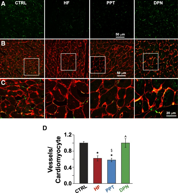 Treatment of HF mice with the ERβ agonist DPN is associated with increased cardiac angiogenesis in HF mice. Confocal images of LV sections immunostained for <t>CD-31</t> ( a ), the overlay of CD-31 and WGA ( b ), and at higher display magnification of the white squares ( c ). d Quantification of capillary density as microvessels per cardiomyocyte. CTRL group was comprised of sham operated mice * P