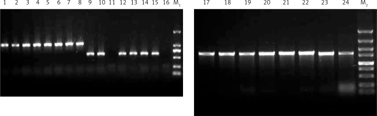 PCR products verifying the recombinant plasmids pFastBacHT A-Der f 1, pFastBacHT A-Der f 2, and pFast-BacHT A-Der f 4. Lanes 1–8, Der f 1; lanes 9–16, Der f 2; lanes 17–24, Der f 4; lane M1, DNA marker DL 2000; lane M 2 , λ-Hind III DNA marker
