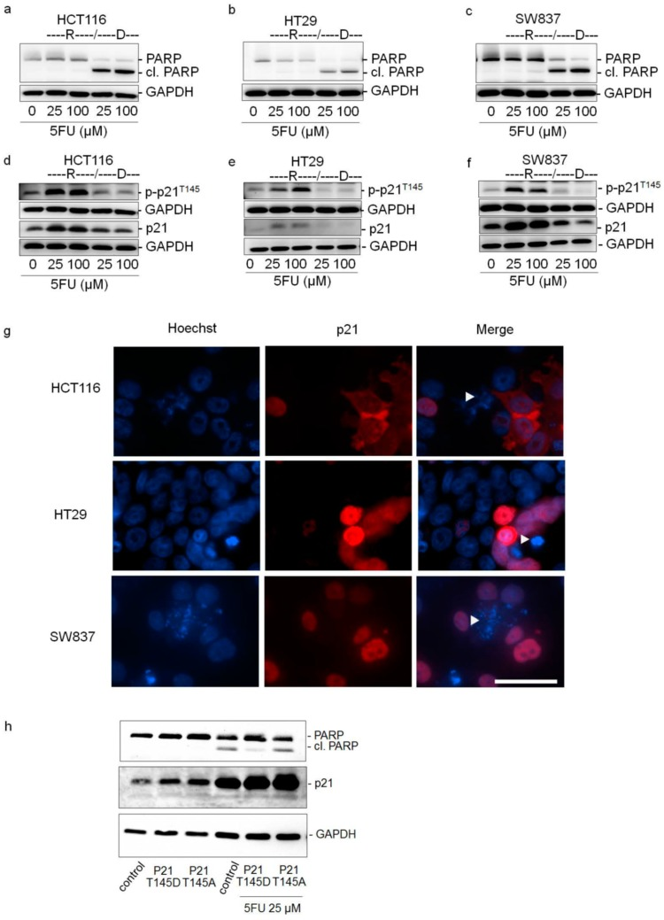 Cytoplasmic p21 mediates 5FU resistance in colorectal cancer cells. ( a – f ) The expression levels of PARP, cleaved PARP (cl. PARP), phosphorylated-p21 (p-p21 T145 ) and p21 in resistant cells (R) and dead cells (D) were determined by Western Blot analysis after 48 h of treatment with 5FU. For this, HCT116, HT29, and SW837 cells were treated with various concentrations of 5FU. After 48 h, resistant cells (R) and dead cells (D) were collected separately and protein lysates were prepared. The blots were re-probed with GAPDH to confirm equal loading of the samples. ( g ) Expression of p21 in viable and dead cells after 48 h of 5FU treatment. HCT116, HT29, and SW837 cells were treated with various concentrations of 5FU for 48 h and the expression levels of p21 were determined by immunofluorescence staining for p21 (red) and the cell nuclei (Hoechst 33342, blue). White arrow indicates apoptotic cells having condensed chromatin and/or fragmented nuclei. Scale bar: 50 μm. ( h ) 5FU susceptibility of HCT116 cells transfected with hyperphosphorylated p21 T145D and unphosphorylatable p21 T145A . After 24 h of transfection, cells were treated with 5FU (25 μM) for further 48 h. Untreated cells were used as controls. The expression levels of PARP, cleaved PARP (cl. PARP), and p21 were determined by Western Blot analysis. The blots were re-probed with GAPDH to confirm equal loading of the samples.