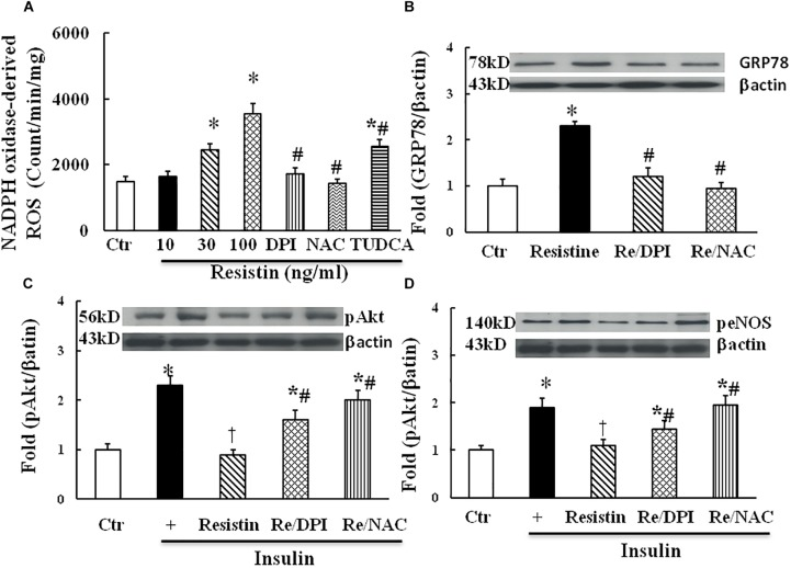 Effect of antioxidant on resistin-induced ROS ( A , N = 7 per condition), GRP78 ( B , N = 7 per condition), pAkt (Ser473, C ; N = 7, per condition) and peNOS (Ser1177, D ; N = 7, per condition) expressions in HUVECs. Resistin (10–100 ng/mL) dose-dependently increased NADPH oxidase-derived ROS production, which was partially reduced by TUDCA (500 μg/mL). Antioxidant with either NADPH oxidase inhibitor DPI (10 μmol/L) or ROS scavenger NAC (1 μmol/L) inhibited resistin-induced GRP78 expression and improved insulin signaling pAkt (Ser473) and peNOS (Ser 1177) impaired by resistin. Loading control imagines for βactin were reused for pAkt and peNOS. ∗ p