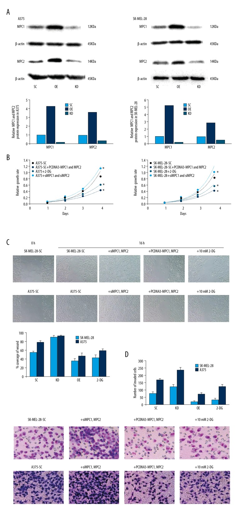 MPC1 and MPC2 repress melanoma cells proliferation and migration. ( A ) Western blot analysis showed overexpression or knockdown of MPC1 and MPC2 in A375 and SK-MEL-28 cells. The relative protein expression levels were quantified and are shown in the bar diagram. ( B ) Growth curves of A375 and SK-MEL-28 cells, which were transfected with MPC1 and MPC2, siRNAs against MPC1 and MPC2, scramble or treated with 10 mM 2-DG, respectively. * Indicates P