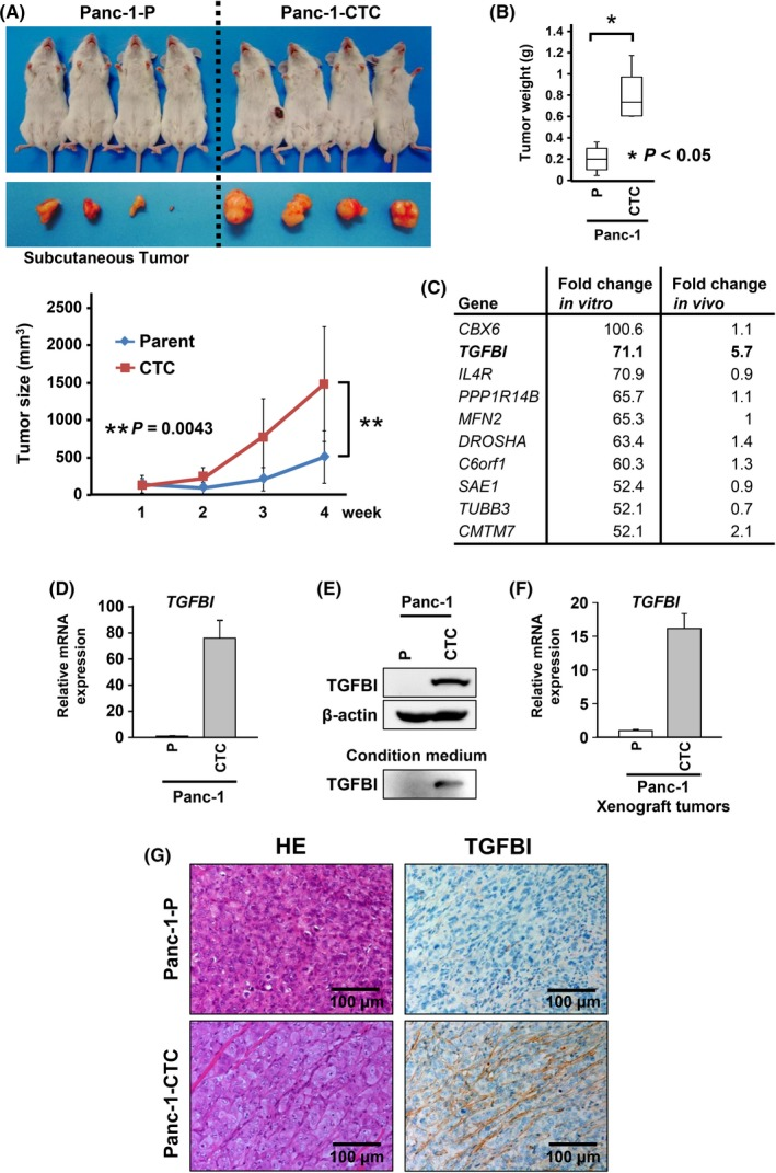 Expression of transforming growth factor beta‐induced (TGFBI) in Panc‐1‐circulating tumor cells (CTC) was increased in both in vitro and in vivo samples. A, Subcutaneous tumor size of Panc‐1‐parent (Panc‐1‐P) and Panc‐1‐CTC cells was measured every week after inoculation using the formula tumor size (mm 3 ) = [(length) × (width) 2 ]/2. Data are presented as mean ± SD of samples (n = 4). B, Mice were killed on day 28 after inoculation, and the weights of the s.c. tumors were measured. Data are presented as a box plot ± SD of the samples (n = 4). C, Results of the gene expression array with in vitro and in vivo samples of Panc‐1‐P and Panc‐1‐CTC cells. D,E, In vitro TGFBI expression was assessed by qRT‐PCR (D) and western blotting (E). F,G, In vivo TGFBI expression was assessed by qRT‐PCR (F) and immunohistochemical staining with each s.c. tumor derived from Panc‐1‐P or Panc‐1‐CTC cells (G). G, Representative images of immunohistochemical staining of TGFBI protein in s.c. tumorous tissues from mice. Bars, 100 μm