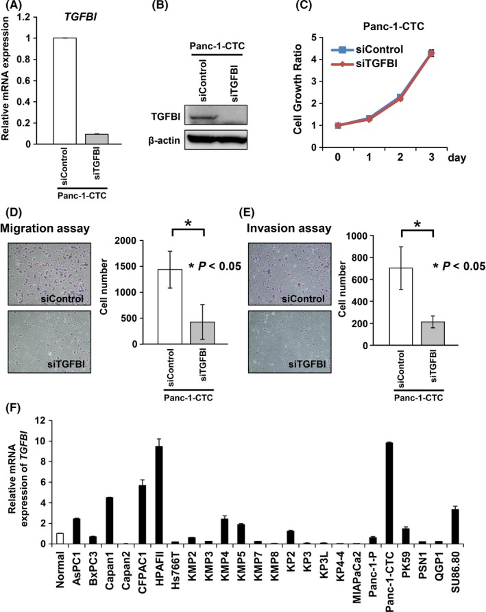 Suppression of transforming growth factor beta‐induced (TGFBI) decreased the migration and invasion abilities of Panc‐1‐circulating tumor cells (CTC). A,B, Knockdown of TGFBI expression in Panc‐1‐CTC cells by TGFBI‐specific siRNA as confirmed by qRT‐PCR (A) and western blotting (B) with samples 3 d after transfection with siRNA. C, Number of viable cells 24‐72 h after transfection of TGFBI‐specific siRNA or a negative control siRNA in Panc‐1‐CTC cells was determined by WST‐8 assay at the indicated times. Results of the relative growth ratio are shown as the mean ± SD for three separate experiments, with each carried out in triplicate. Differences were analyzed by one‐way ANOVA. D,E, Numbers of migratory (D) and invasive cells (E) through the Boyden chamber at 24 h after replating (1.5 × 10 4 cells per well) 3 d after siRNA transfection were counted using Diff‐Quick Stain. Data are presented as mean ± SD of samples (n = 3). Differences were analyzed by the Mann‐Whitney U test. F, TGFBI expression in 25 pancreatic cancer cell lines was assessed by qRT‐PCR in comparison with healthy pancreatic tissue. Data are presented as mean ± SD of samples (n = 3)