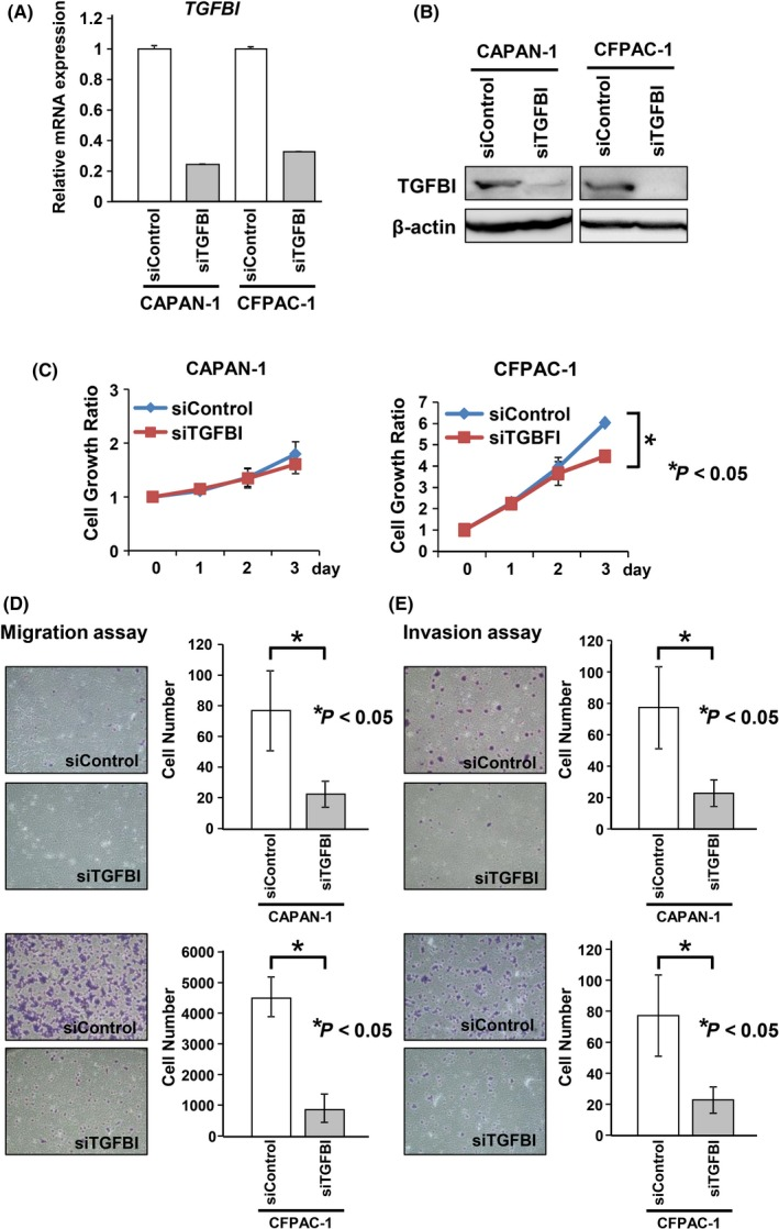 Knockdown of transforming growth factor beta‐induced ( TGFBI ) expression decreased the migration and invasion abilities of CAPAN‐1 and CFPAC‐1 cells. A,B, Knockdown of TGFBI expression in CAPAN‐1 and CFPAC‐1 cells by TGFBI‐specific siRNA as confirmed by qRT‐PCR (A) and western blotting (B) with samples 3 d after siRNA transfection. C, Number of viable cells 24‐72 h after transfection of TGFBI‐specific siRNA or a negative control siRNA in CAPAN‐1 and CFPAC‐1 cells was determined by WST‐8 assay at the indicated times. Results of the relative growth ratios are shown with mean ± SD for three separate experiments, with each carried out in triplicate. Differences were analyzed by one‐way ANOVA. D,E, Numbers of migratory (D) and invasive cells (E) through the Boyden chamber at 24 h after replating (1.5 × 10 4 cells per well) at 3 d after siRNA transfection were counted using Diff‐Quick Stain. Data are presented as mean ± SD of samples (n = 3). Differences were analyzed by the Mann‐Whitney U test
