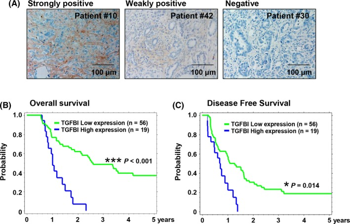 Expression of transforming growth factor beta‐induced (TGFBI) was associated with poor prognosis in patients with pancreatic ductal adenocarcinoma (PDAC). A, Representative images of immunohistochemical staining of TGFBI protein in PDAC tissues. Bars, 100 μm. B,C, Kaplan‐Meier curves for the overall survival (B) and disease‐free survival (C) of 75 patients with primary PDAC. High TGFBI immunoreactivity in tumor tissues was significantly associated with poor overall and disease‐free survival ( P