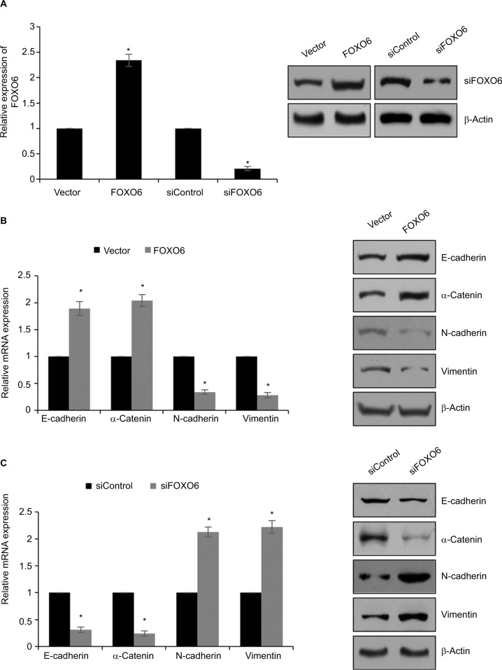 FOXO6 suppresses EMT in breast cancer cells. Notes: ( A ) MCF-7 cells were transfected with vector or FOXO6, or siControl or siFOXO6, respectively. After transfection for 48 h, the expression of FOXO6 was determined by qRT-PCR and Western blotting analyses. FOXO6 vs vector, siFOXO6 vs siControl, * p