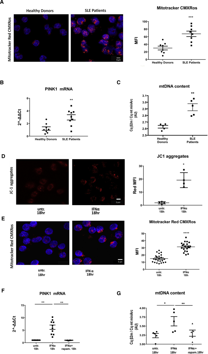 IFNα-Mediated Lysosomal Dysfunction Impedes Mitochondrial Clearance and Leads to mtDNA Accumulation (Α) Confocal microscopy for Mitotracker CMXRos dye staining in freshly isolated CD14 + monocytes from healthy donors (n = 8) and SLE patients (n = 8). One representative result is depicted. Averages of MFI per cell are graphed. Datasets were analyzed using non-parametric Mann-Whitney U test. (Β) TaqMan qPCR analysis for mtDNA content in freshly isolated monocytes of healthy donors (n = 5) and SLE patients (n = 5), expressed as a ratio of the Cq values of genomic DNA (gDNA) (β2 m)/mtDNA (mt minArc). Datasets were analyzed using non-parametric Mann-Whitney U test. (C) Relative mRNA expression of PINK1 compared to GAPDH in CD14 + monocytes from healthy donors (n = 8) and SLE patients (n = 9). Datasets were analyzed using non-parametric Mann-Whitney U test. (D) Confocal microscopy for JC-1 dye-staining in CD14 + monocytes from healthy donors ± IFNα (n = 4). One representative result is depicted. Average of MFI of J-aggregates per cell are shown. Datasets were analyzed using paired Student's t test. (E) Confocal Microscopy for Mitotracker CMXRos dye staining in freshly isolated CD14 + monocytes from healthy donors (n = 20) +/− IFN-α for 18h. One representative result is depicted. Αverages of MFI per cell are graphed. (F) Relative mRNA expression of PINK1 compared to GAPDH in CD14+ monocytes from healthy donors (n = 10). (G) Taqman QPCR analysis for mtDNA content in freshly isolated monocytes of healthy donors (n = 5) +/− IFN-α, rapam for 18 h expressed as a ratio of the Cq values of gDNA (β2m)/ mt DNA (mt minArc). Scale bar, 5 μM. Results are expressed as mean + SEM. ∗ p