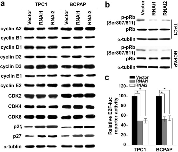 Knockdown of CITED1 upregulates the expression of the CKIs p21 and p27. a Western blotting analysis was performed to detect the expression levels of the cell cycle regulators <t>cyclin</t> A2, cyclin B1, cyclin D1, cyclin D2, cyclin D3, cyclin E1, cyclin E2, CDK2, CDK4, CDK6, p21 Cip1 , and p27 Kip1 in the indicated cells. α-tubulin was used as the loading control. b Silencing of CITED1 in the studied cells significantly inhibited the phosphorylation of pRb at the Ser608 residue. α-tubulin served as the sample loading control. c Silencing of CITED1 attenuated E2F transcriptional activity according to the E2F-luc reporter assay. The results are derived from three independent experiments and are expressed as the mean ± SD. *P