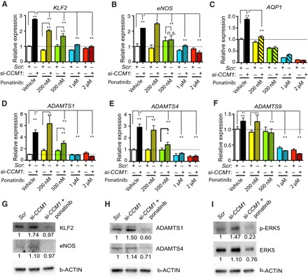 "Ponatinib blocks MEKK3-induced signaling in endothelial cells. ( A to F ) Gene expression analysis of ponatinib-treated HUVECs with siRNA-induced CCM1 (si- CCM1 ) gene knockdown. Ponatinib treatment in HUVECs normalized the increased expression of KLF2 (A), eNOS (B), and AQP1 (C), as well as ADAMTS1 (D), ADAMTS4 (E), and ADAMTS9 (F), following CCM1 knockdown. ( G to H ) Western blotting analysis showing that ponatinib treatment decreased KLF2, eNOS, ADAMTS1, and ADAMTS4 expression. ( I ) Ponatinib treatment decreased the expression levels of ERK5 and p-ERK5. Error bars shown as SEM and significance determined by one-way analysis of variance (ANOVA) for multiple comparisons ( n = 4). ""*"" indicates P"
