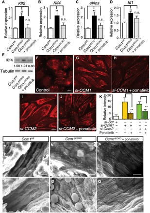"""Ponatinib normalized MEKK3-induced signaling and endothelium ultrastructure in CCM mouse models. ( A to D ) Gene expression analysis of ponatinib-treated Ccm1 iECKO mice. Ponatinib treatment at P6 normalized the increased expression of Klf2 , Klf4 , eNos , and Id1 in the freshly isolated brain endothelial cells from Ccm1 iECKO mice as analyzed at P8. Error bars are shown as SEM, and significance was determined by one-way ANOVA, n = 6. """"**"""" indicates P"""