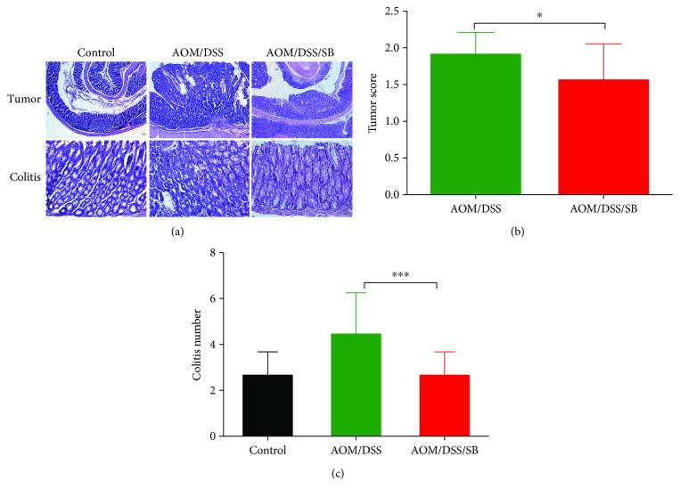 Silibinin treatment suppressed colitis-associated tumorigenesis. (a) Hematoxylin and eosin (H E) staining of colon tumor and colitis in the control, AOM/DSS, and AOM/DSS/SB groups. Scale bars, 50 μ m. (b, c) Tumor score and colitis score of each group. SB: silibinin. n = 5~11 ( ∗ P