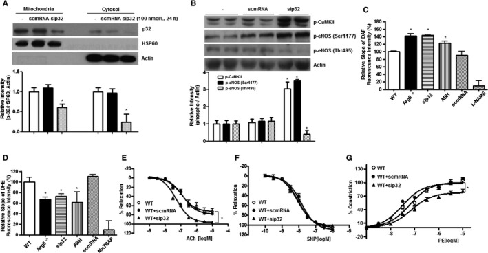 sip32‐induced NO ‐dependent vasorelaxation in the aortas of WT mice. A, Aortic segments from WT mice were incubated with si RNA (final concentration,100 nmol/L) for 24 hours. p32 level was detected using Western blot analysis after mitochondrial fractionation (n=4 independent experiments from 4 mice). B, Aortas of WT mice were treated with si RNA , and proteins phosphorylation was analyzed using Western blotting (n=3 independent experiments from 3 mice). NO production (C) and ROS generation (D) were measured as time‐dependent changes in DAF (4‐amino‐5‐methylamino‐2',7'‐difluorofluorescein) and DHE (dihydroethidine) fluorescence intensities, respectively. The slopes were defined as the change in fluorescence intensity, and relative slopes are presented as a bar graph. si RNA and ABH (2(S)‐amino‐6‐boronohexanoic acid) were incubated with aortas for 24 hours. NG‐nitro‐L‐arginine methyl ester (100 μmol/L) was used as a control (n=8 aortic segments from 4 mice). Endothelium‐dependent vasorelaxation responses to A (E), endothelium‐independent relaxation responses to SNP (F), and contractile responses to PE (G) were determined using si RNA ‐treated aortas (n=8 aortas from 4 mice). NO indicates nitric oxide; ROS, reactive oxygen species; siRNA, small interfering RNA; WT, wild‐type. *vs untreated, P