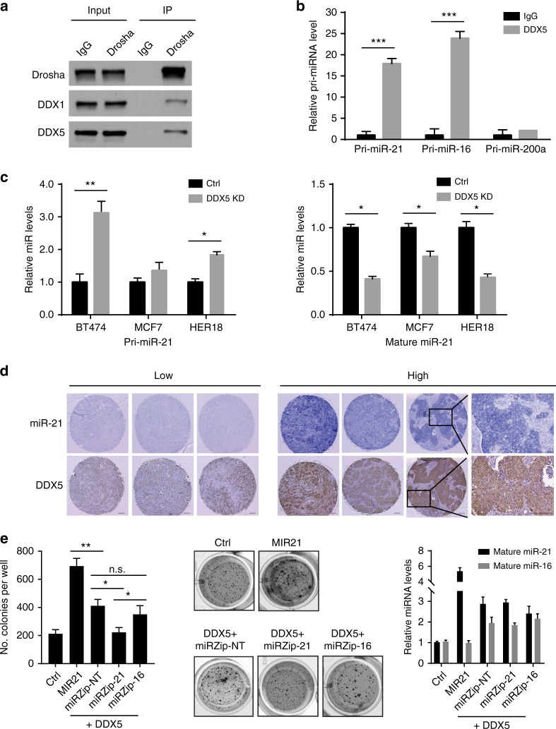 DDX5 gene is co-amplified with <t>MIR21</t> and DDX5 facilitates maturation of pri-miR-21. a Immunoprecipitation (IP) and western blotting analyses were performed using indicated antibodies. Normal immunoglobulin G (IgG) was used as a negative control for IP. The RNA-binding protein DDX1 was used as a positive control for the Drosha-binding proteins. b The DDX5-bound pri-miRNAs were immunoprecipitated with DDX5 and analyzed by <t>qRT-PCR.</t> Control IgG was used as a negative control. c Levels of primary or mature forms of miR-21 were analyzed in control and DDX5-knockdown breast cancer cells harboring 17q23 amplicon. d Levels of mature miR-21 and DDX5 were analyzed in breast tumor samples using in situ hybridization and immunohistochemistry. Representative staining images of tissue samples are shown. Scale bar, 100 μm. e Soft agar colony formation assays with MMTV-ErbB2 mouse mammary epithelial cells transduced with control vector or lentiviral vector expressing the indicated genes. Representative images are shown in the middle panel and relative expression levels of mature miR-16 or miR-21 are shown in the right panel. * p