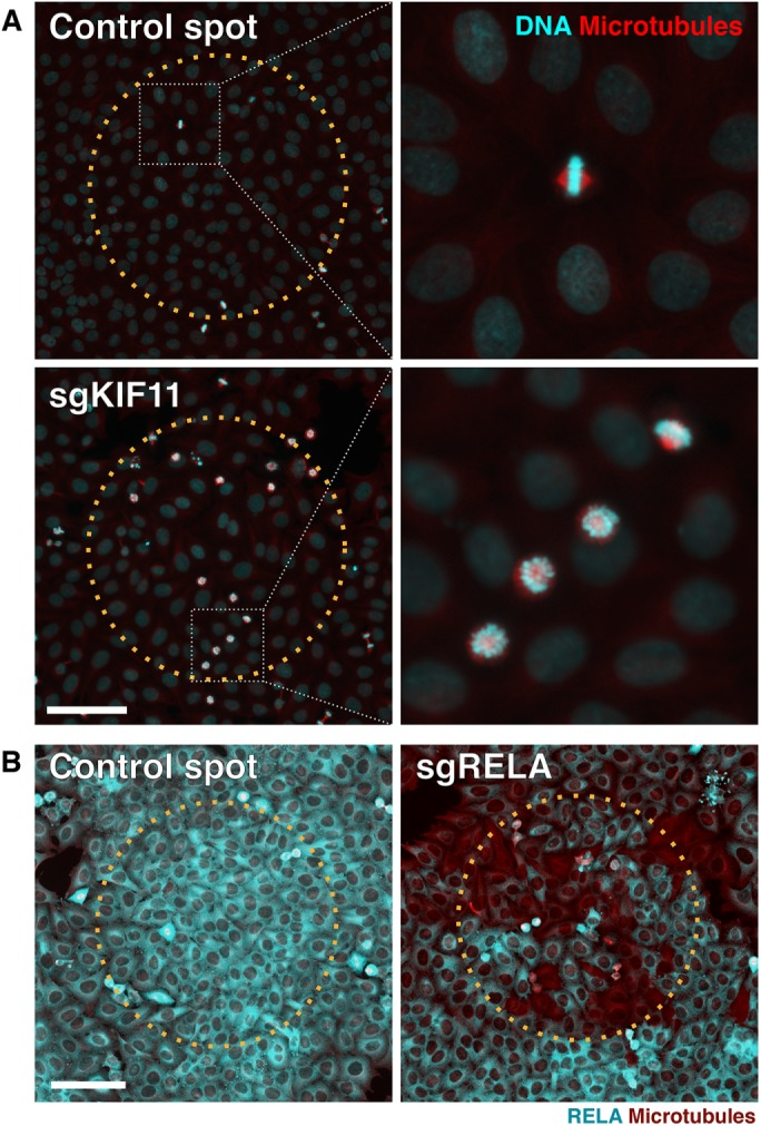 Reverse transfection allows efficient delivery of sgRNAs for phenotypic analyses. Immunofluorescence images of HeLa cells that were fixed and imaged 72 h postseeding on printed sgRNA array with control spots or spots containing sgRNA targeting KIF11 (A) or RELA (B). Cas9 expression in these cells was induced 12–18 h before seeding. For the KIF11 sgRNA array, cells were stained for DNA (cyan) and microtubules (red). Dotted boxes (white) indicate magnified region (right). For the RELA sgRNA array, cells were stained for RELA (cyan) and microtubules (red). In all images, the dotted circles (orange) indicate region of printed spot. Scale bar = 100 µm.