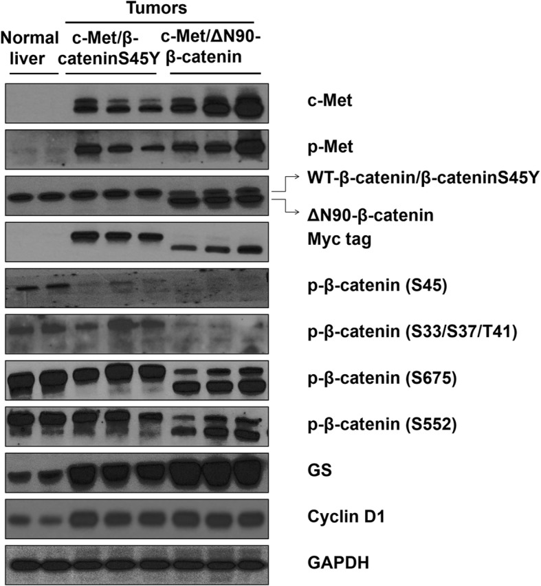 Biochemical analysis of HCC lesions of c-Met/β-cateninS45Y c-Met/∆N90-β-catenin mice. Western blot analysis of c-Met, p-Met, β-catenin, Myc tag, p-β-catenin (S45), p-β-catenin (S33/S37/T41), p-β-catenin (S675), p-β-catenin (S552), GS, and cyclin D1 in normal liver as well as HCC lesions from c-Met/β-cateninS45Y c-Met/∆N90-β-catenin mice. GAPDH were used as a loading control. Please note the presence of two bands for the β-catenin protein. The upper band represents endogenous β-catenin protein or β-cateninS45Y protein. The lower band represents ectopically injected ∆N90-β-catenin protein
