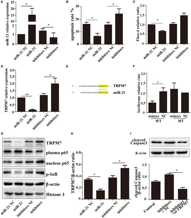 miR-21 can reduce PC12 cell death and TRPM7 is a functional target of miR-21 (A) . MiR-21 transfection efficiency detected by qPCR (B) . Apoptosis rate of PC12 cells transfected with miR-21 mimics, miR-21 inhibitors, and their corresponding negative controls (NC) (C) . Fluo-4 assay of PC12 cells (D) . The expression level of TRPM7 in PC12 cells transfected with miR-21 mimics, miR-21 inhibitors, and their corresponding negative controls (NC) (E) . Target region of miR-21 and TRPM7 (F) . Luciferase assay for the combination of miR-21 and TRPM7 (G) . Western blot analyzing the expression level of TRPM7, p65, and p-IκB proteins (H) . Quantitative histogram of TRPM7 expression level in different groups (I) . Western blot analyzing the expression level of cleaved caspase-3. * p