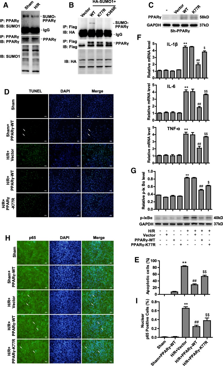 PPARy SUMOylation antagonizes injury after H/R by suppressing NF-κB activation. a H9C2 cells were cultured under normoxic or H/R conditions, and cell lysates were then immunoprecipitated with anti-PPARγ antibody, followed by blotting with anti-SUMO1 or anti-PPARγ antibody. Whole-cell lysates were blotted with anti-SUMO1 antibody. b 293 T cells were cotransfected with HA-SUMO1 and Flag-PPARγ wild-type or SUMO site mutants (K77R and K365R) plasmids as indicated. The cell lysates were immunoprecipitated with anti-Flag antibody, followed by blotting with anti-HA or anti-Flag antibody. Whole-cell lysates were blotted with anti-HA antibody. c PPARγ-knockdown H9C2 cells were constructed by sh-RNA lentivirus. Sh-PPARγ cells were transfected with vector, PPARγ-WT or K77R plasmids as indicated; then, cells were cultured under normoxic or H/R conditions. Cells lysates were blotted with anti-PPARγ or anti-GAPDH antibody. d TUNEL staining of apoptotic H9C2 cells transfected with vector, PPARγ-WT and K77R plasmids as indicated under normoxic or H/R conditions. Scale bars, 100um. e Quantification of apoptotic rates based on TUNEL staining ( n = 5). f RT-PCR analysis of IL-1β, IL-6 and TNFα in sh-PPARγ cells transfected with vector, PPARγ-WT and K77R plasmids as indicated after being subjected to normoxic or H/R conditions ( n = 3). g Western blot analysis of phosphorylated IκBα protein in sh-PPARγ cells transfected with vector, PPARγ-WT and K77R plasmids as indicated after being subjected to normoxic or H/R conditions. Quantification of the densitometry of the western blot band is shown above ( n = 3). h Representative immunofluorescence images of p65 proteins (green) in sh-PPARγ cells transfected with vector, PPARγ-WT and K77R plasmids as indicated under normoxic or H/R conditions. Scale bars, 100um. i Quantification of nuclear p65-positive cells based on TUNEL staining ( n = 5). Experiments in a , b , c , f and g were performed three times, and experiments in d , e , h and i were performed five times. Data presented are means ± SD, ** P
