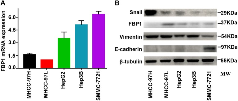 Expression of FBP1 and EMT markers in five HCC cell lines. a Quantitative real-time PCR analysis of FBP1 in MHCC-97H, MHCC-97L, HepG2, Hep3B and SMMC-7721 cells. b Western blot analysis of FBP1, E-cadherin, Vimentin and Snail in MHCC-97H, MHCC-97L, HepG2, Hep3B and SMMC-7721 cells. All data are based on three independent repeats. MW molecular weight